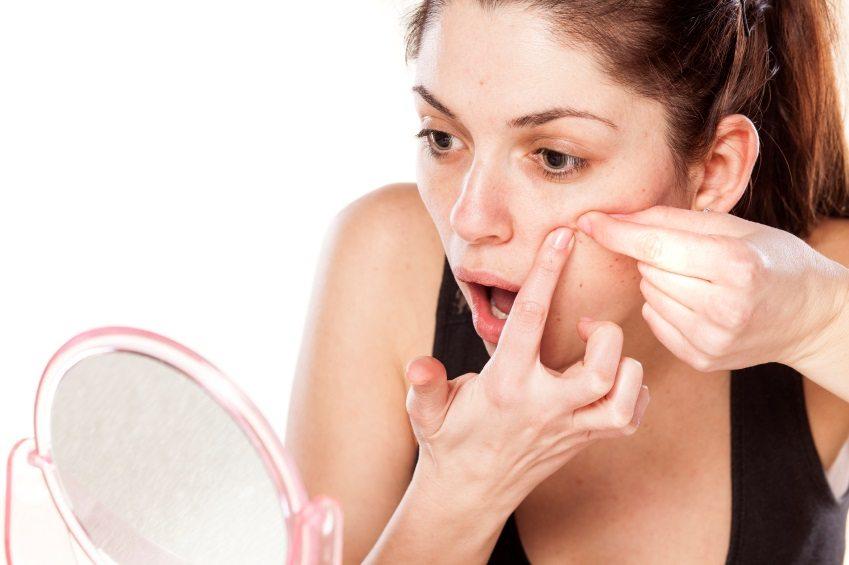acne pimples jerawat girls