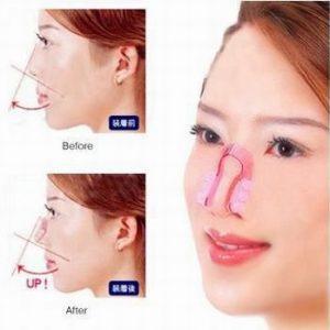 Produk Nose Up Mancungkan Hidung