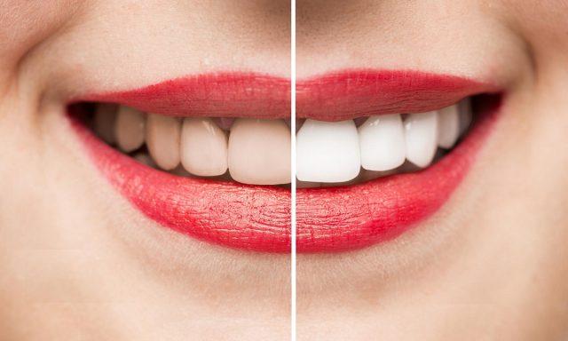 Cara Memutihkan Gigi Paling Mudah